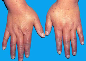 TCM Treatment for rheumatic arthritis
