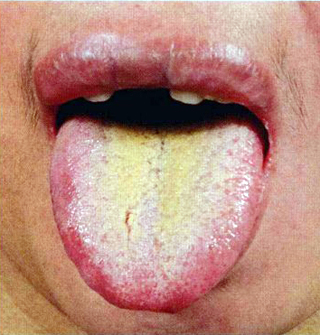 chronic gastritis with tongue diagnosis, Skeleton