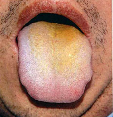 Tongue diagnosis of traditional Chinese medicine - tcmwindow com