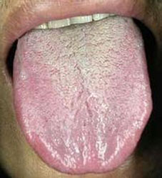Uncover the Code of Health by Tongue Coating