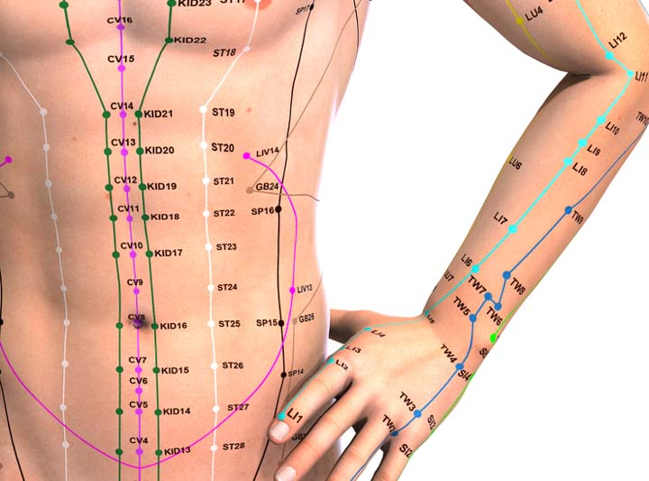 acupuncture helps relieve drugs for post stroke constipation