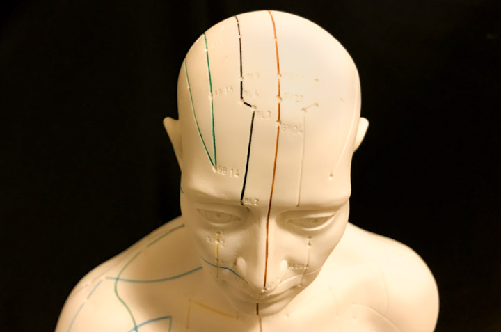 effects of acupuncture on patients with post stroke depression