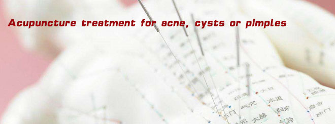 Acupuncture treatment for acne, cysts or pimples